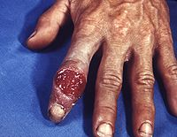Extragenital syphilitic chancre of the left index finger PHIL 4147 lores.jpg