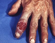 220px-Extragenital_syphilitic_chancre_of_the_left_index_finger_PHIL_4147_lores.jpg