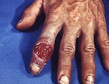 hvordan smitter syfilis