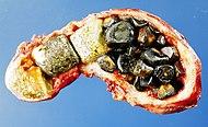 Gallstones.jpg