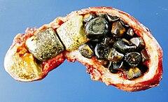 infection vésicule biliaire