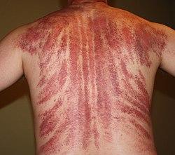 Gua Sha Massage Aftermath.jpg