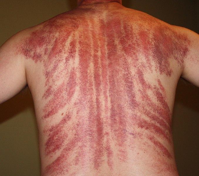 File:Gua Sha Massage Aftermath.jpg