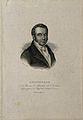 Guillaume, Baron Dupuytren. Line engraving by F. J. Wellcome V0001724.jpg