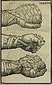 Hieronymi Mercvrialis De arte gymnastica libri sex - in quibus exercitationum omnium vetustarum genera, loca, modi, facultates, and quidquid deniq. ad corporis humani exercitationes pertinet, (14593424889).jpg