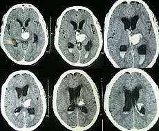 Intracerebral hemorrhage.jpg
