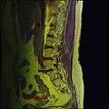 Lumbosacral MRI case 11 11.jpg