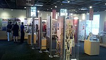 crutches, braces, photographs, and other exhibits