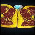 Pelvic MRI T1FSE T2frFSE T2FSfrFSE 29.jpg