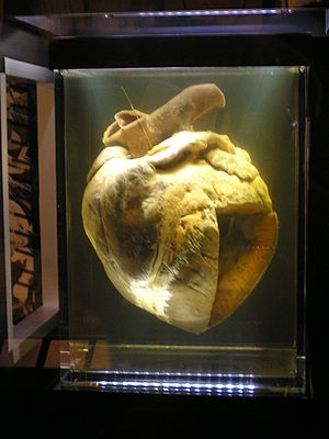 Phar Lap - Phar Lap's heart at the National Museum of Australia. It was formerly held by the Institute of Anatomy in Canberra.