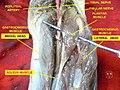 Plantaris muscle 2.jpg