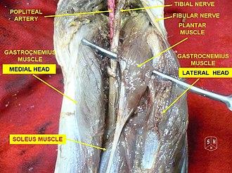 Plantaris muscle - Image: Plantaris muscle 2
