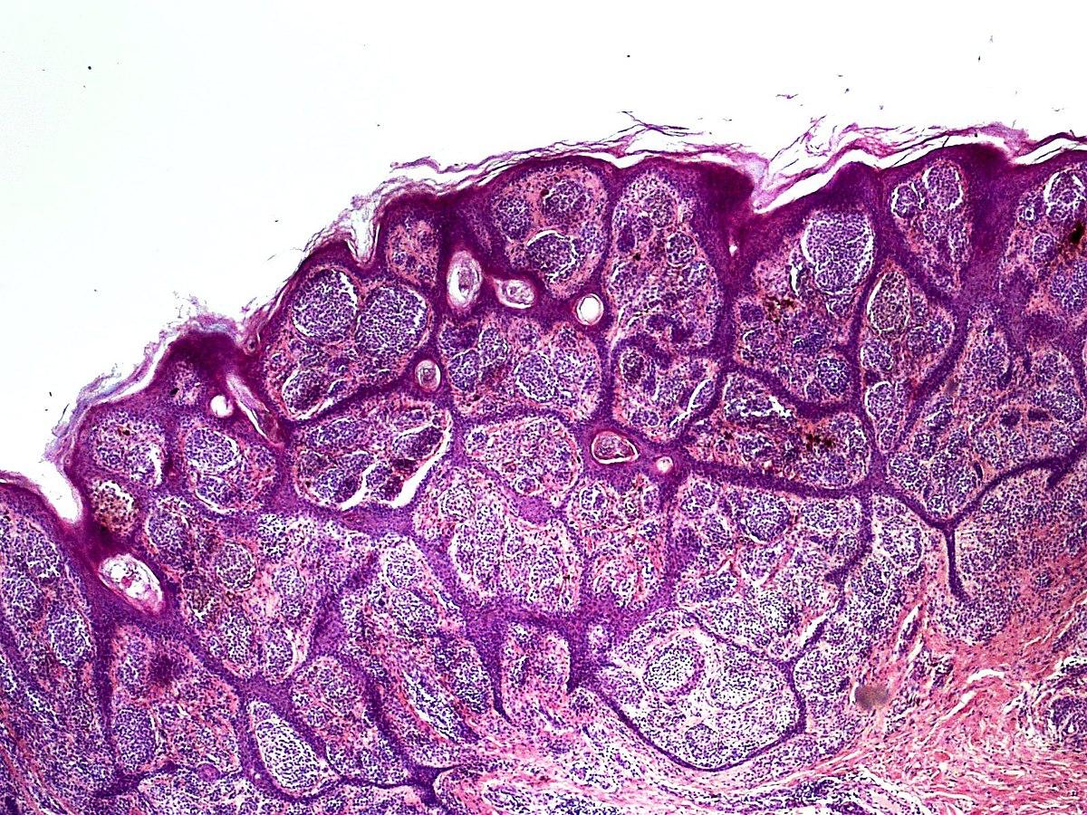 Nevoid melanoma - Wikipedia