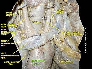 Ascending aorta - Image: Slide 12eeee