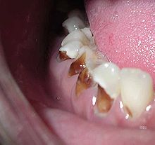 On Side of Tooth Cavities