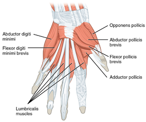 Adductor pollicis muscle - The superficial muscles of the left hand. Palmar view Adductor pollicis is labelled at bottom right.