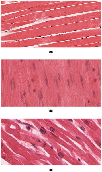 (a) Skelettmuskulatur; (b) glatt muskulatur och (c) hjärtmuskulatur.