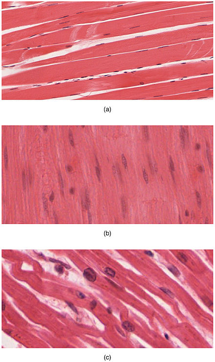The body contains three types of muscle tissue: (a) skeletal muscle, (b) smooth muscle, and (c) cardiac muscle. (Same magnification) 414 Skeletal Smooth Cardiac.jpg