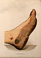 A foot with a skin disease around the sole. Chromolithograph Wellcome V0010265EL.jpg