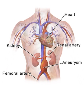 Abdominal aortic aneurysm - Wikipedia