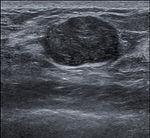 Breast US Fibroadenoma 0531093725281 Nevit.jpg