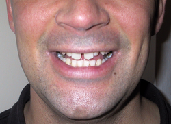 Why British Teeth Are Something To Smile About Financial Times