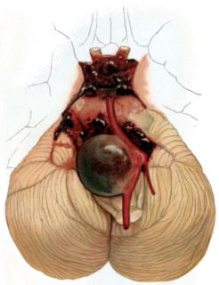 Intracranial aneurysm Cerebrovascular disorder
