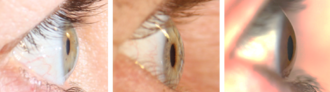 Anterior chamber of eyeball - Image: Different anterior chamber depths as seen from the lateral perpendicular view
