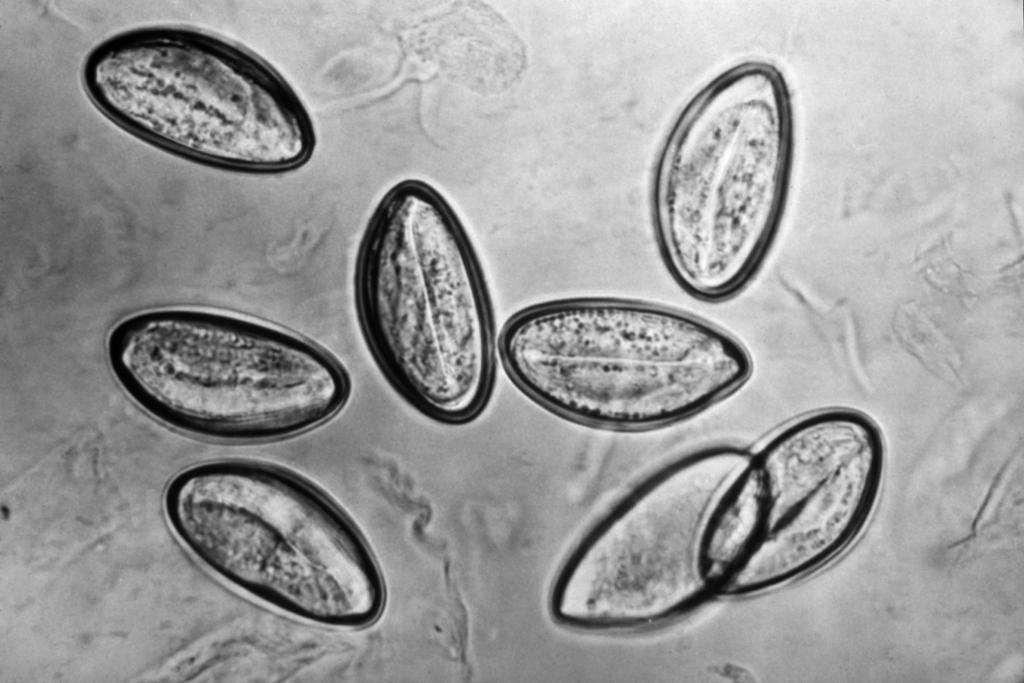 Enterobius vermicularis dpdx Paraziti cdc dpdx Enterobius vermicularis dpdx