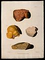 Four sections of diseased liver. Coloured mezzotint by W. Sa Wellcome V0009750ER.jpg