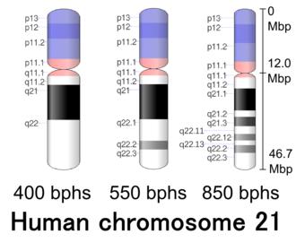 Chromosome 21 (human) - Image: Human chromosome 21 400 550 850 bphs
