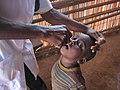 Immunization in Cameroon (34692993536).jpg