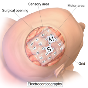 Intracranial electrode grid for electrocorticography.png