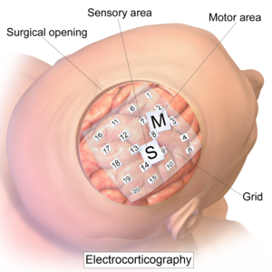 Electrocorticography - Intracranial electrode grid for electrocorticography.