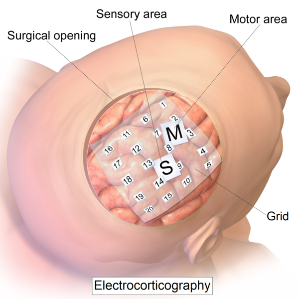 File:Intracranial electrode grid for electrocorticography.png