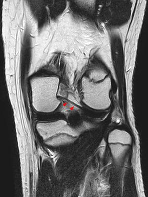 Posterior meniscofemoral ligament - Image: Ligamentum wrisberg