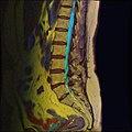 Lumbosacral MRI case 11 06.jpg