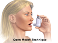 Metered-Dose Inhaler Open Mouth (Adult).png