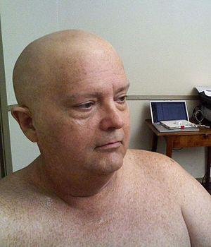 Bald cap - An actor in a bald cap