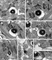 Parasite130059-fig6 Spermiogenesis in Pleurogenidae (Digenea).tif