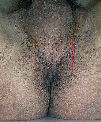 Perineum - Image: Perineum of a male