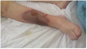 Right leg affected by warfarin necrosis