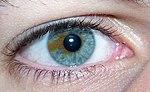 Sectoral heterochromia.jpg
