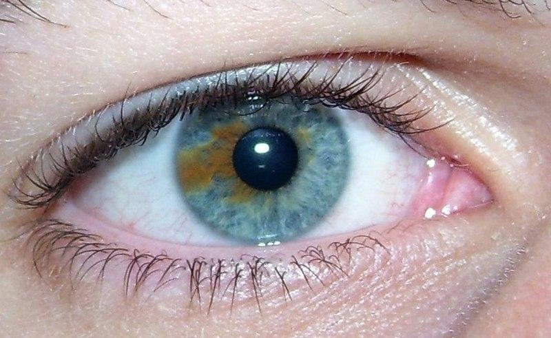 Ficheiro:Sectoral heterochromia.jpg
