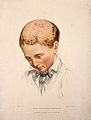The head of a boy with a skin disease of the scalp. Coloured Wellcome V0009862.jpg