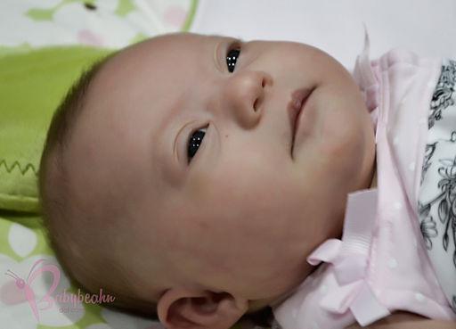 Trisomy 21 - Down Syndrome - Kennedi Beahn - presented by Kraig Beahn