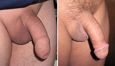 jak się dowiedzieć, co penis mężczyzny erekcja krewetek