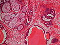 Urocystitis glandularis et cystica.JPG