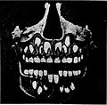 X-ray of human skull with juvenile and permanent teeth (1910).jpg