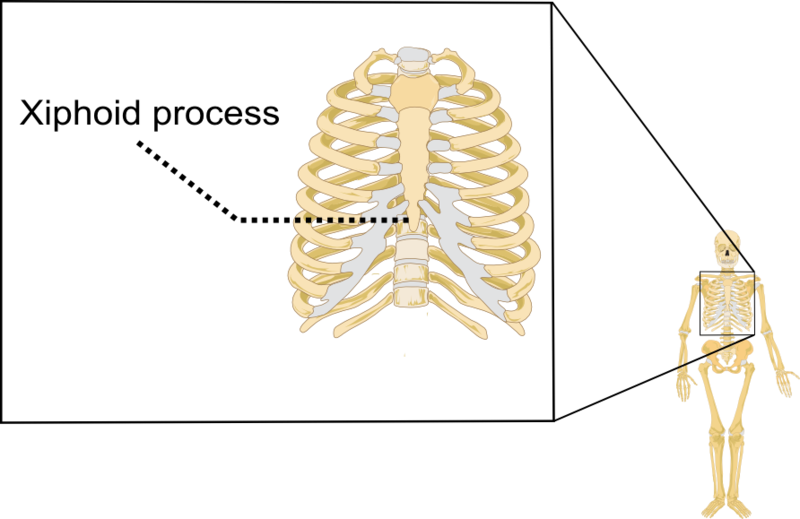 bottom of breast bone/sternum/xiphoid process protruding in a big, Sphenoid